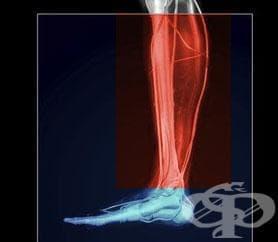 Травми на подбедрицата - изображение