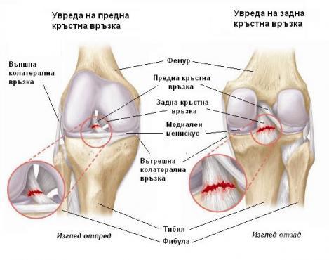 Увреда на кръстните връзки на коляното - изображение