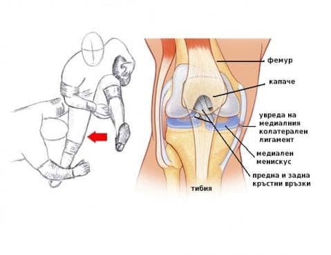 Увреда на медиалния колатерален лигамент на коляното при спортисти - изображение