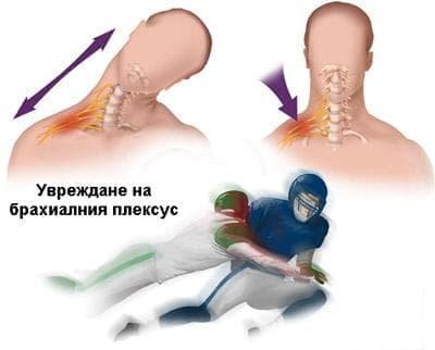 Травматично увреждане на брахиалния плексус в спорта - изображение