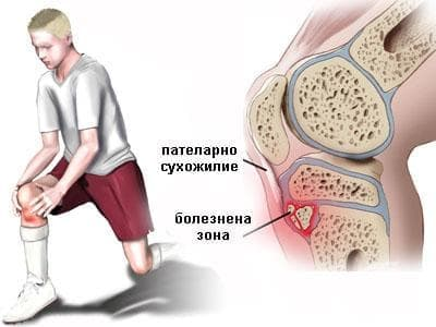 Болест на Осгут-Шлатер при спортисти - изображение