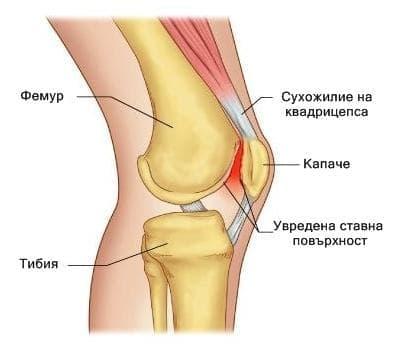 Болка в капачката на коляното при спортисти (коляно на бегач) - изображение