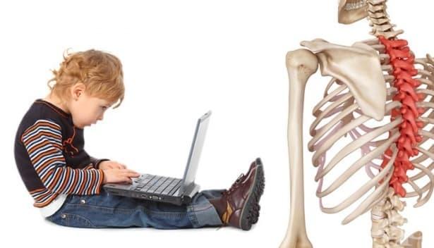 Лошата стойка и гръбначните изкривявания при децата – как да ги открием и какви мерки да вземем - изображение