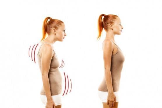 Най-честите нарушения в правилната стойка и упражненията, с който да ги коригираме. - изображение