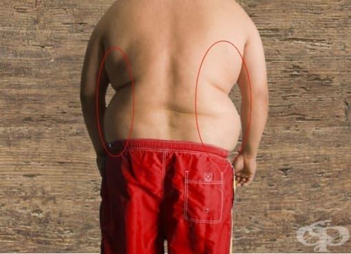 5 съвета за справяне с упоритите мазнини в гърба - изображение