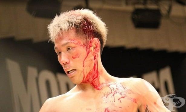 Разкъсно-контузни и порезни рани в спорта - изображение
