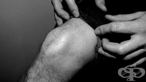 Фрактура на колянното капаче при спортисти - изображение