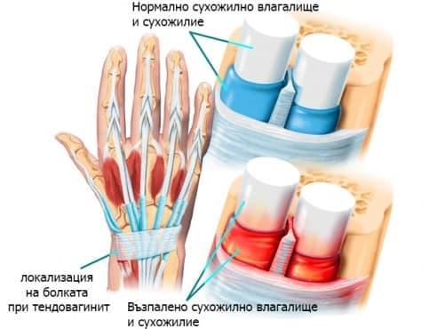 Стенозиращ тендовагинит на китката при спортисти (болест на Де Кервен) - изображение