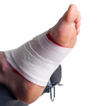 Спортен тейпинг за поддържане на свода на ходилото - изображение