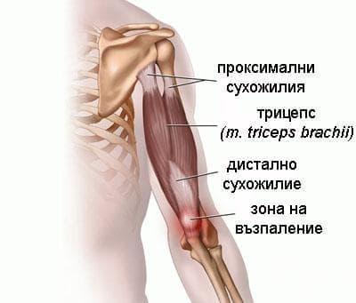 Тендинит на трицепса при спортисти - изображение