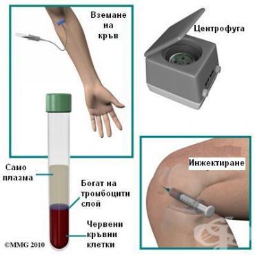 Терапия с обогатена на тромбоцити плазма в спорта - изображение