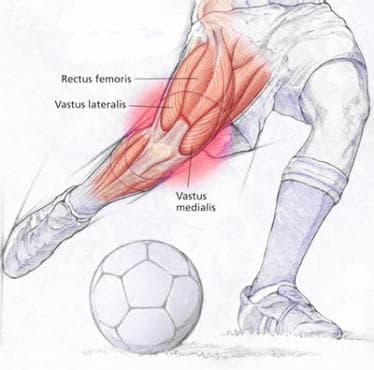 Травма на четириглавия бедрен мускул в спорта - изображение