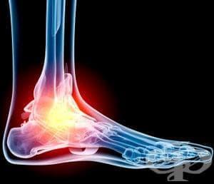 Травми на глезена и ходилото - изображение
