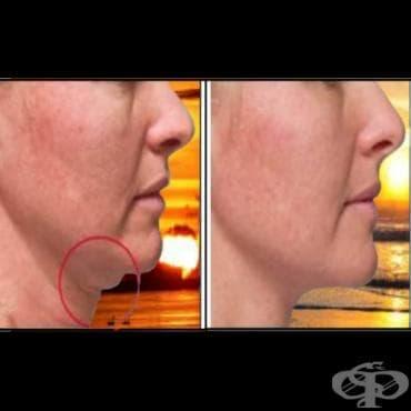 Програма срещу двойна брадичка - изображение