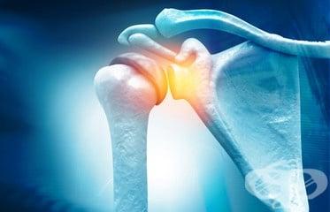 Екстракорпорална ударно-вълнова терапия – технологичният метод за лечение на замръзнало рамо - изображение