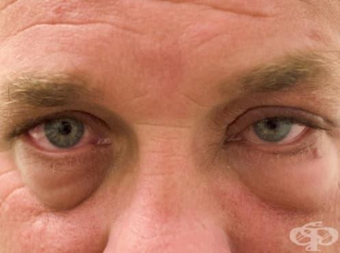 Подуване в областта на очите - изображение