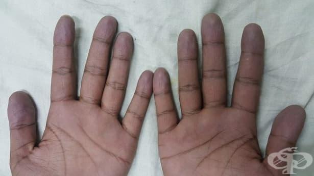 Посиняване на ръцете - изображение