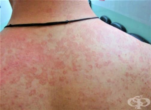 Червени петна по кожата - изображение