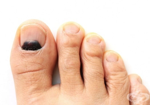 Болка в ноктите на пръстите на краката - изображение