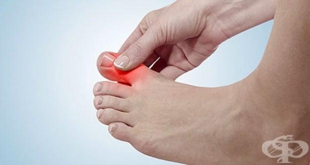 Болка и подуване в големия пръст на крака - изображение