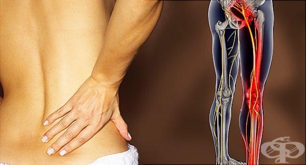 Болка в кръста и крака - изображение