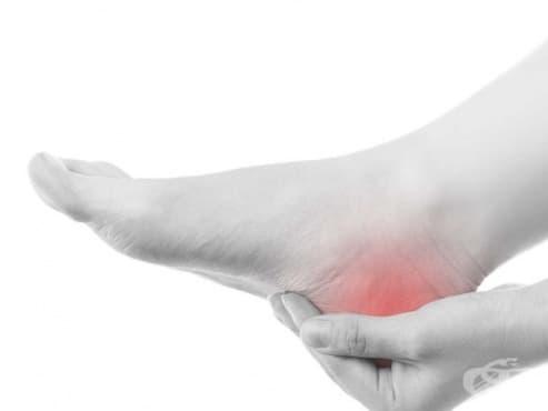 Болка в петата - изображение