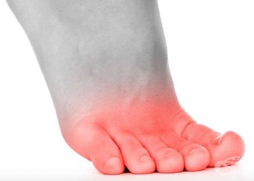Болки в пръстите на краката - изображение