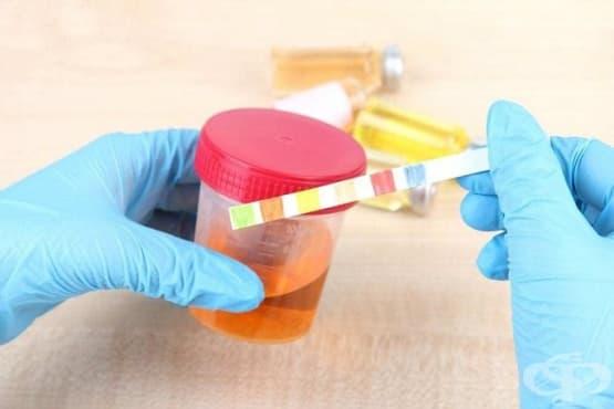 Кръв в урината при деца - изображение
