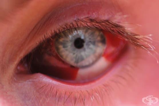 Кръвоизлив в окото - изображение