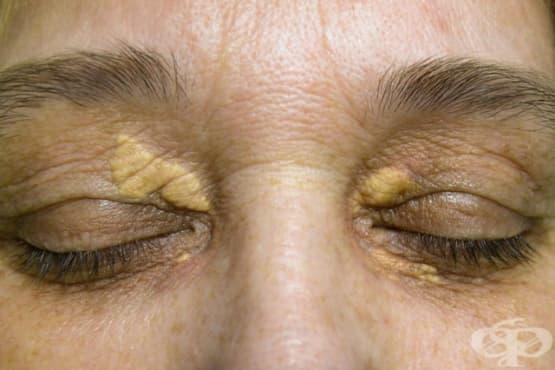 Липса на липопротеин липаза - изображение