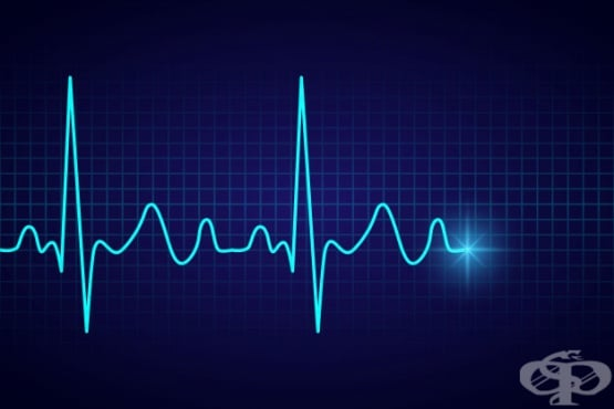 Нарушения на сърдечният ритъм - изображение