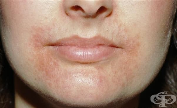 Обрив на устата - изображение