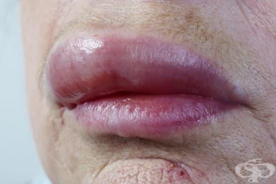 Подуване на устните - изображение