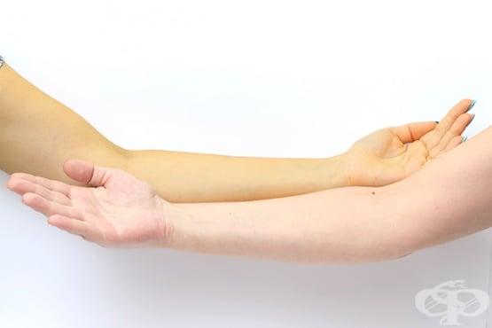 Пожълтяване на кожата - изображение