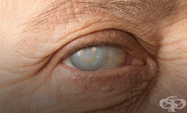 Помътняване на роговицата на едното око - изображение