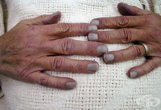 Посиняване на ноктите на пръстите - изображение