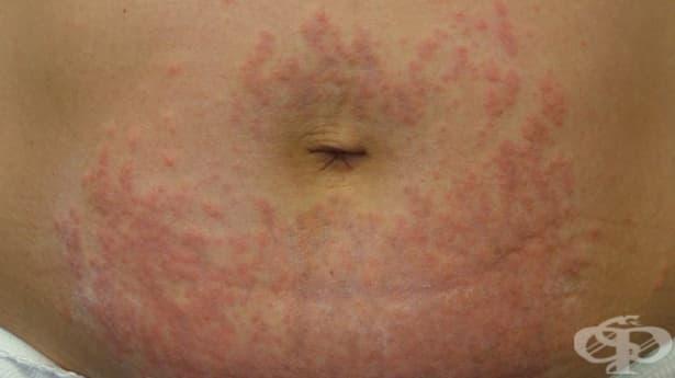 Пъпки по кожата на корема - изображение
