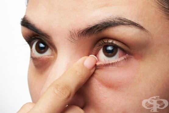 Симптоми, свързани с очите - изображение
