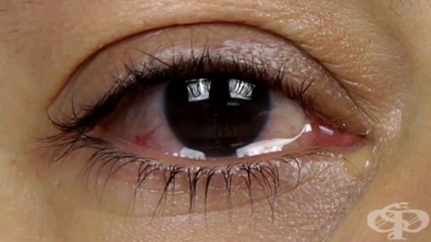 Сълзене на очите - изображение