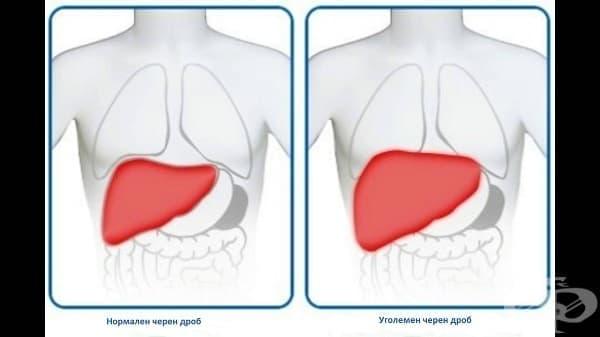 Уголемяване на черния дроб - изображение