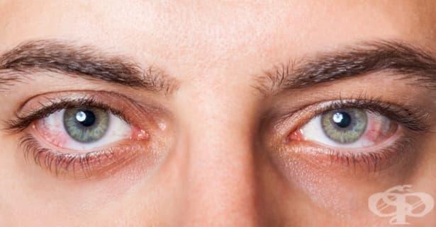 Възпаление на окото - изображение
