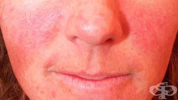 Зачервяване на лицето - изображение