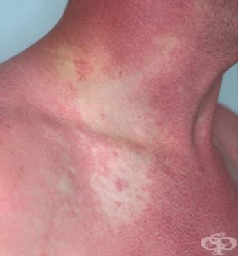 Зачервяване на кожата - изображение