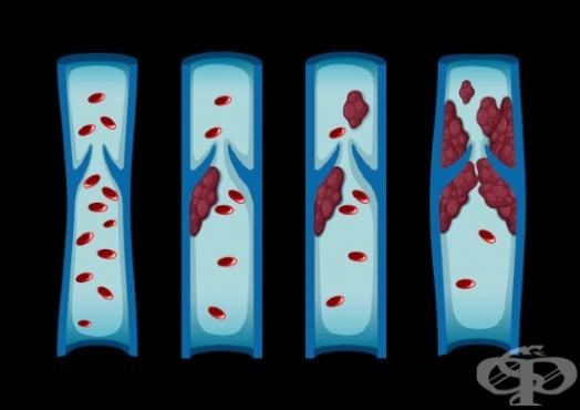 Симптоми от кръвен съсирек - изображение