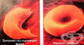 Тестове за доказване на сърповидно-клетъчна анемия - изображение