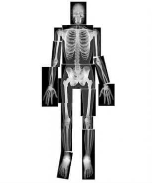 Изследване с рентгенови лъчи - изображение