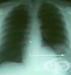 Рентгеново изследване на слезката (далака) - изображение