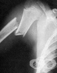 Рентгеново изследване на раменната кост - изображение