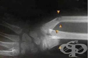 Рентгеново изследване на предмишницата - изображение