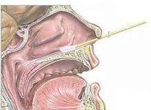 Секрет от нос и гърло - изображение